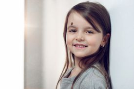 Smiling girl with birthmark on face