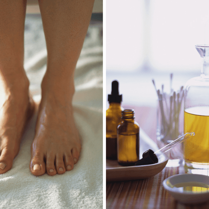 Ways To Use Tea Tree Oil As Remedy For Toe Nail Fungus