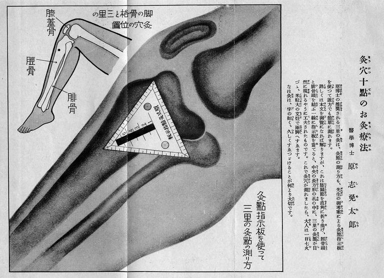 Zu San Li (ST 36), a therapeutic point propagated for regular moxibustion by the Japanese physician Dr. Hara Shimetaro (1882-1991) as an effective method to stimulate the immunesystem. From: Saishin kyūryō hōten, Shufu no tomo sha, 1941