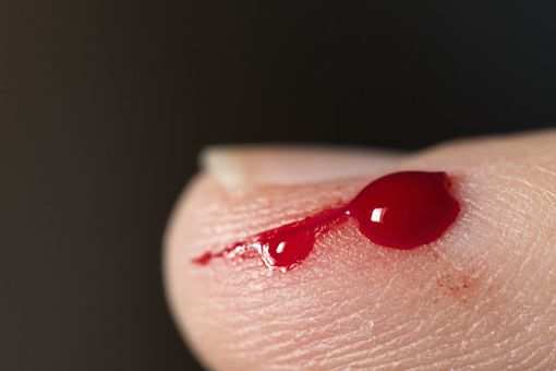 cut on finger with blood